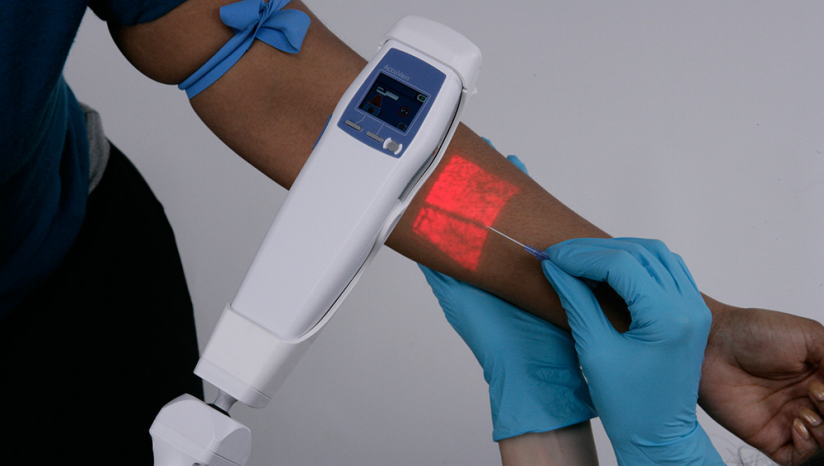 accuvein summary Free research that covers executive summary accuvein av300 is a handheld device which is easy to operate and can be used even in military battlefield or ambulances in 2007, accuvein, in.